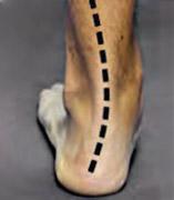 Picior plat - vedere posterioară - poziție relaxată