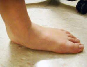 Picior plat, vedere laterală - poziție încărcată