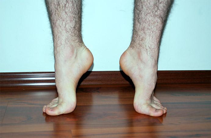 Reconstituirea curbei plantare picior plat
