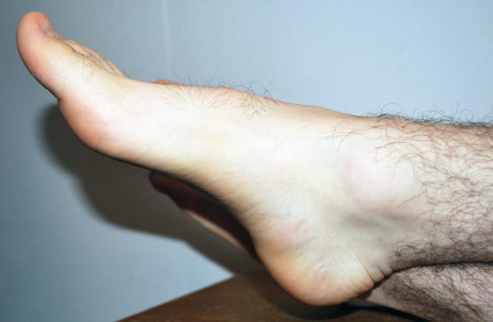 Refacerea boltei plantare pozitie relaxata picior plat