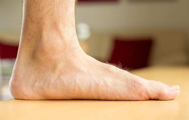 Exemplu de picior plat vedere mediana