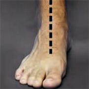 Picior plat - vedere anterioară - poziție neutră