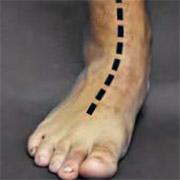 Picior plat - vedere anterioară - poziție relaxată