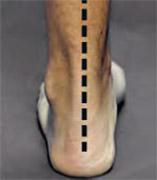 Picior plat - vedere posterioară - poziție neutră