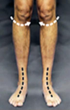Rotatia genunchilor la piciorul plat