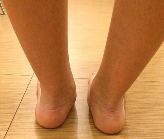 Pacient cu picior plat