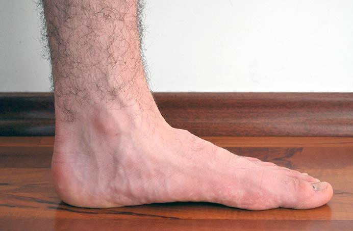 Picior plat
