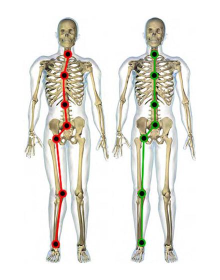 Articulatiile afectate la piciorul plat